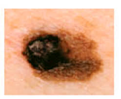 Melanoma Warning Signs And Images The Skin Cancer Foundation