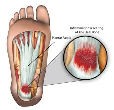 Image result for plantar fasciitis
