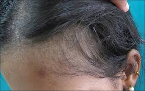indian j dermatol venereol leprol