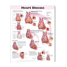 Anatomy Of The Heart Chart Heart Disease Anatomical Chart 2nd Edition