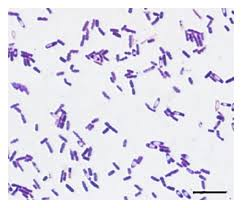 Gram Positive Bacilli Gram Staining Basic Introduction Lessons Tes Teach