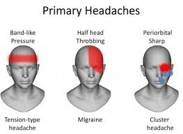 Cluster Headache Location Chart Diagnose Headache Types From Headache Chart To Treat