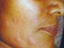 hives on face treatments symptoms