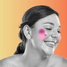 redness or rosacea beauty photos