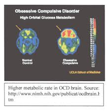 Hollander OCD and the Brain