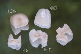 Dental Inlay What Is The Difference Between Inlay Onlay Overlay And