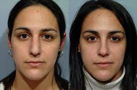 This type of nose job is done for cosmetic purposes and is not covered by health insurance. Do I Need Septoplasty Or Rhinoplasty Pearlman Aesthetic Surgery