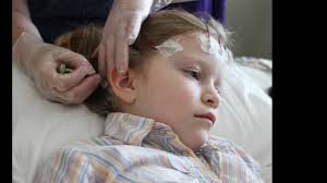 Pediatric Ambulatory Eeg For Epilepsy And Seizure Disorders In Children