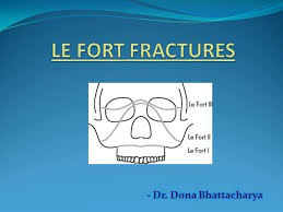 Le Fort Fracture Le Fort Fracture 2 Authorstream