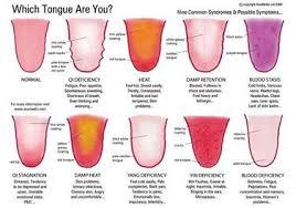 Tongue Diagnosis Wikipedia