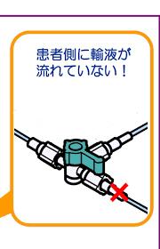 三方 活栓 向き