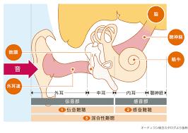 蝸牛 型 メニエール 病
