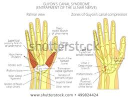 vector ilration of entrapment of the ulnar nerve in the wrist in the c of guyon