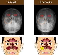 副 鼻腔 炎 繰り返す