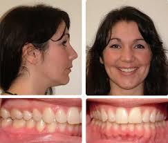 Our Results Bruner Orthodontics Duvall Orthodontics