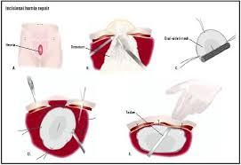 incisional hernia repair procedure