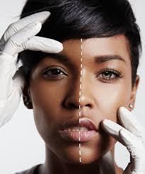 Image result for skin bleaching