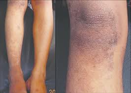 Figure 2 Case 1 Showing Papules Coalescing To Form Plaques Over The