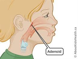 Adenoid Surgery Caring For Your Child After The Operation