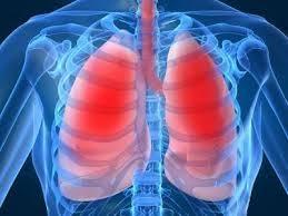 Пневмония при туберкулезе легких симптомы лечение и причины Туберкулез легких симптомы у взрослых Как лечить туберкулез Туберкулез симптомы первые признаки