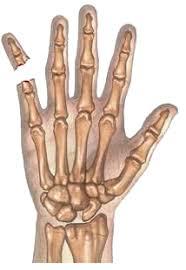 Artrose handen (Duim oorzaak, symptomen behandeling