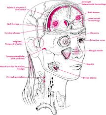 Firebert Treat Migraine Headache With Massage And