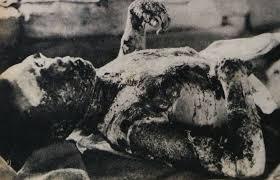 victim of hiroshima atomic bombing realities of war  victim of hiroshima atomic bombing realities of war hiroshima history and historical photos