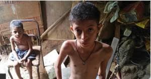 Resultado de imagen de DESNUTRICIÓN EN vENEZUELA