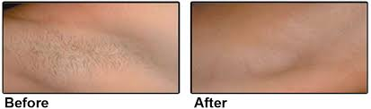 is ipl hair removal good