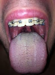 witte uitslag tong