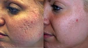 Acne : behandeling opstoten en verwijderen
