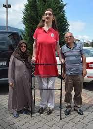 Dünyanın en uzun boylu kadını Rümeysa Gelgi Guinness Rekorlar Kitabı'nda