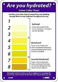 Medical Urine Color Chart Amazon Com Laetas 4 Urine Color Chart Stickers 7 X 2