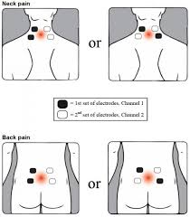 Tens Machine Pad Placement Chart Transcutaneous Electrical Nerve Stimulator Tens