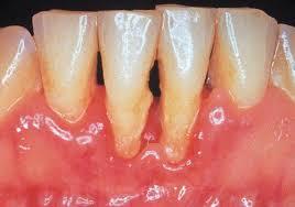 Kết quả hình ảnh cho răng lung lay