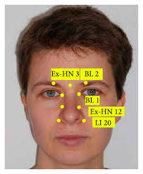 Acupuncture Facelift Points Chart Standardised Point Chart For Facial Acupuncture Download