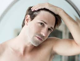 Male Pattern Baldness Cure Cool How To Fight Male Pattern Baldness Men's Health