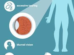 pink eye conjunctivitis symptoms and