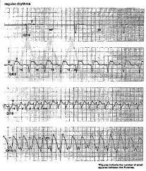 Telemetry Heart Rate Chart Ekg Interpretation