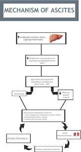 Pathophysiology Of Liver Cirrhosis In Flow Chart Cirrhotic Ascites Pathophysiological Changes And Clinical