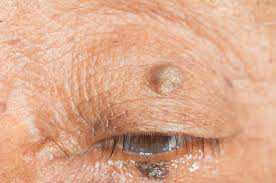 dealing with unsightly warts we have