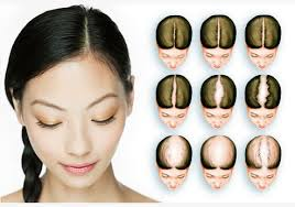 female hair loss causes what causes