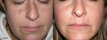 before and after pictures of laser hyperpigmentation treatment