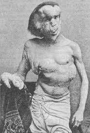 the elephant man. Modren The Merrick Photographed In 1889 The Year Before His Death 1890 For The Elephant Man