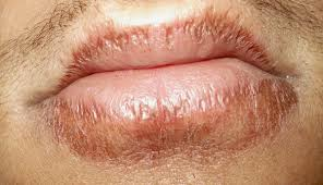 tingling lips may signify a stroke is