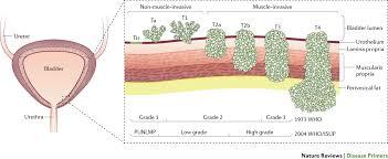 Bladder Cancer Nature Reviews Disease Primers