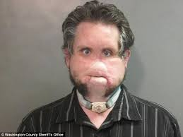joshua box 35 a severely disfigured level 2 offender from arkansas was