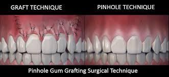 pinhole gum grafting