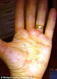 Rashes: When an itch wrecks your life - and NOTHING can get rid of ...