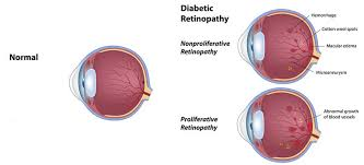 Diabetes Stages Chart Diabetic Eye Care Milwaukee Diabetic Retinopathy Mequon